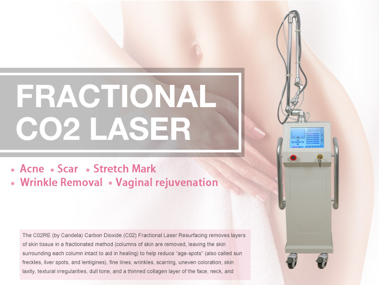 CE approved co2 fractional laser vaginal tightening equipment with remove scar