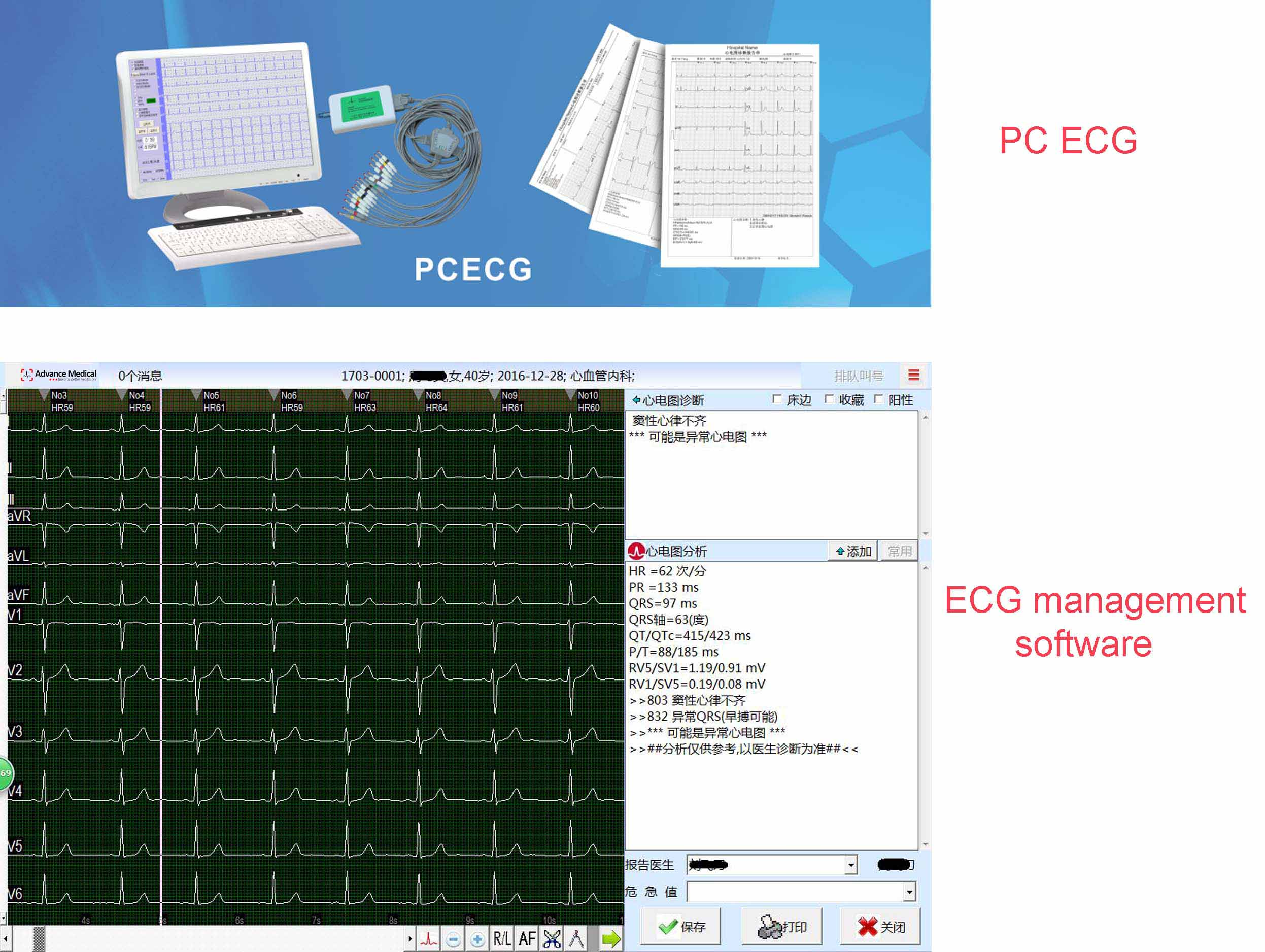 Nt-a5 Linux Pos Terminal,Windows Pos Machine,58mm Thermal