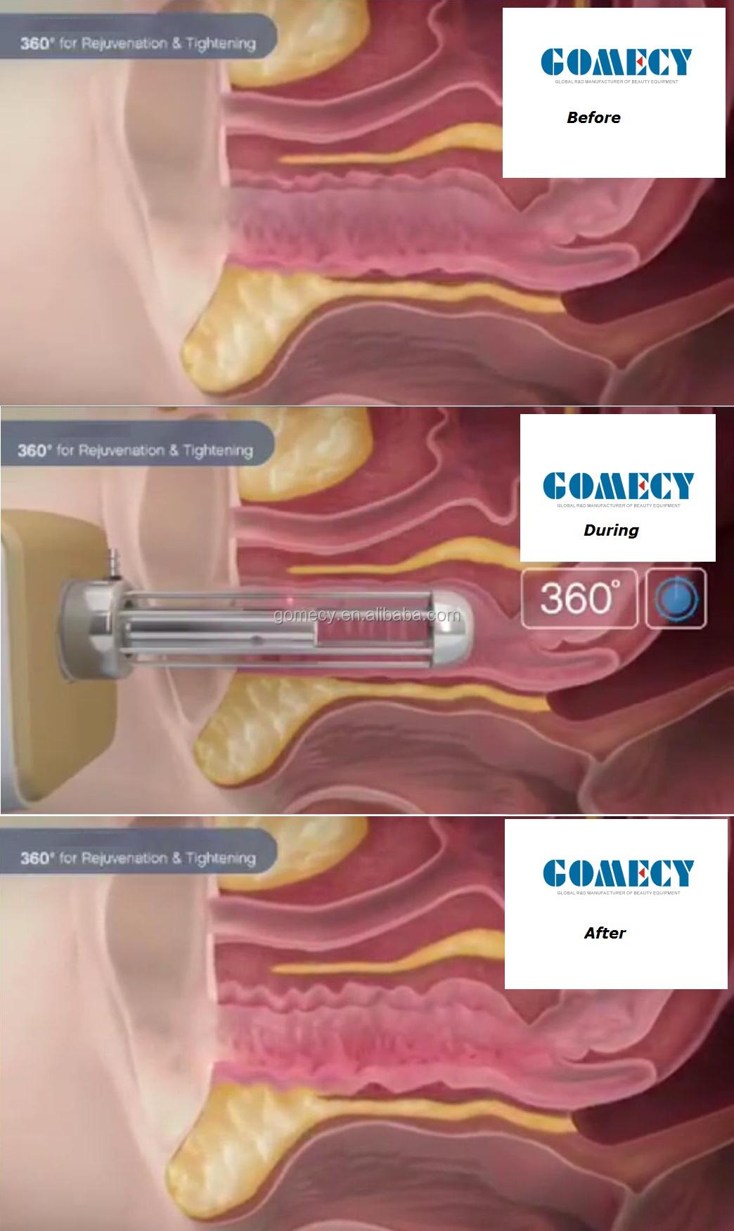 co2 fraction gynecology.jpg