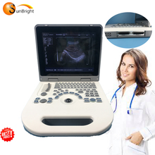Obstetri Ginekologi Diagnostik Ultrasonic Mesin Laptop Harga Murah Ultrasound Scanner