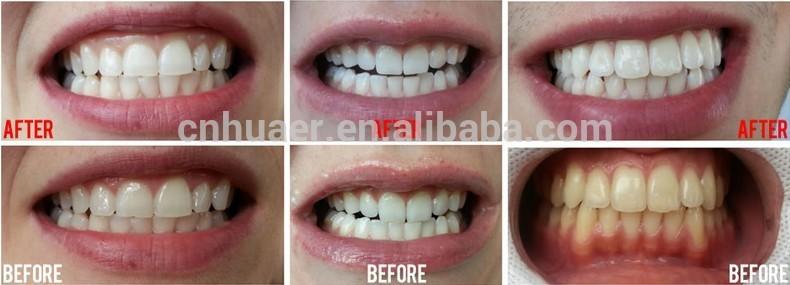 Professional Teeth Whitening Led Light Bleaching Machine With Al