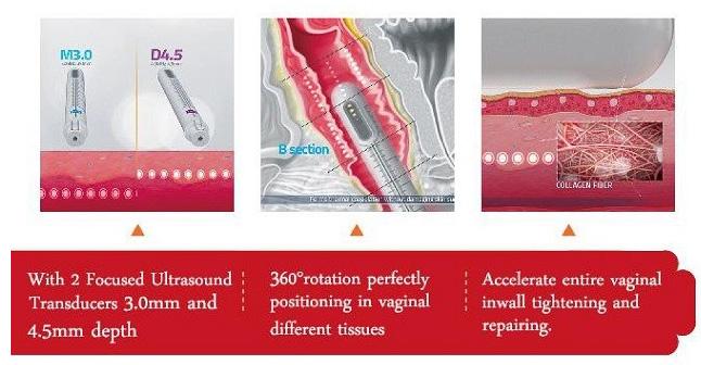 Niansheng newest Professional Vaginel Tightening Machine