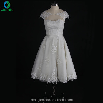 2018 New Collection Open Back Cap Sleeve Lace Pattern Short