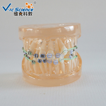 24pcs Half Metal Ceramic Bracket Orthodontic Medical Dental Tooth Model