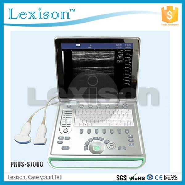 Stupendous Ultrasound Scan Machine Ultrasound Scan Machine Suppliers And Largest Home Design Picture Inspirations Pitcheantrous