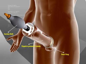 Penis enlarging tech