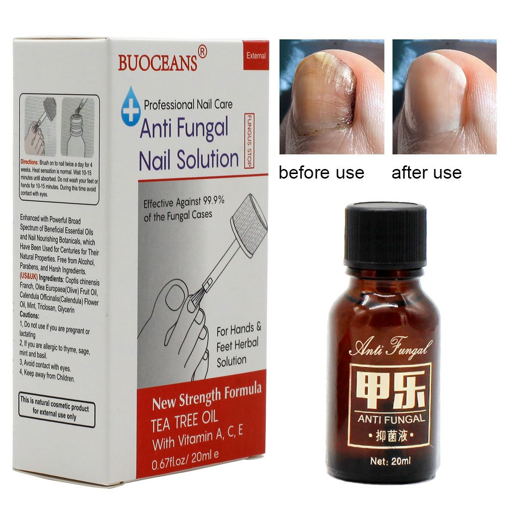 Buy Yoffee Clear Advanced Nail Fungus Solution With Antibacterial