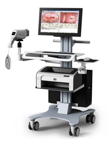 Камера в гинекологии фото 420-584