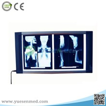 LED Double Connections medical x-ray radiography film viewer
