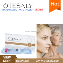 OTESALY Hyaluronic Acid gel Injection to Buy/Hyaluronic Acid Syringe/Hyaluronic Acid Gel injectable