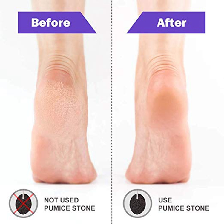 Pumice Stone, Foot Stone Callus Remover, Pedicure Tools for Exfoliation to Remove Dead Skin