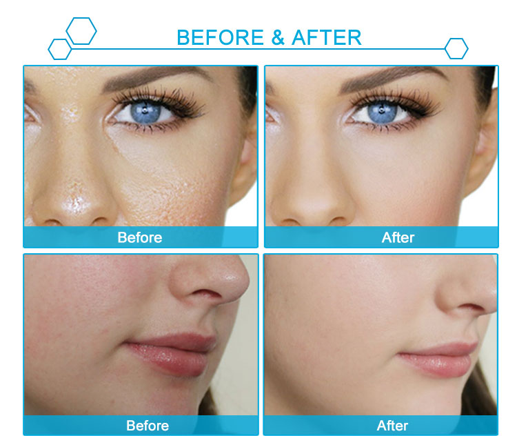 Wholesale Cosmetics Skincare Face Whitening Vitamin C Skin Care Hyaluronic Acid Serum
