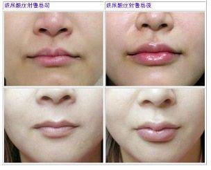 cautissa botox serum how to use
