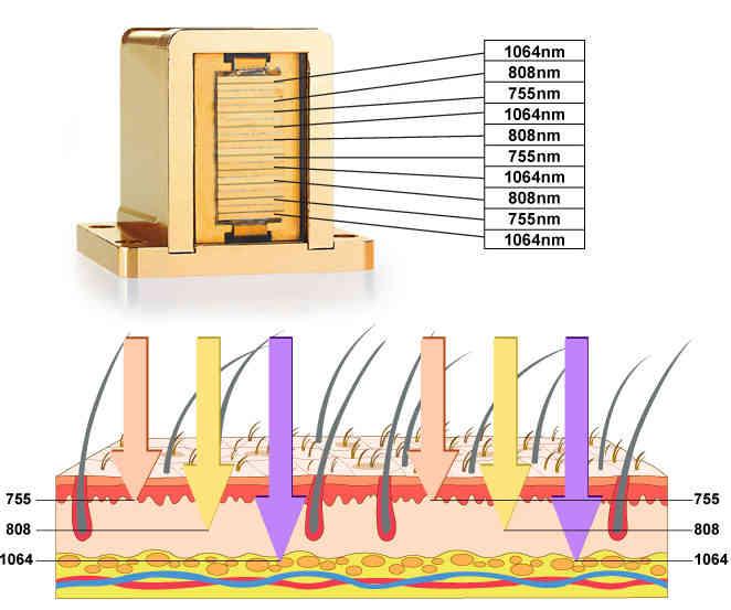 80% salão de escolhê-lo!!! portátil profissional depiladora braun adequado para seis tipo de cor da pele