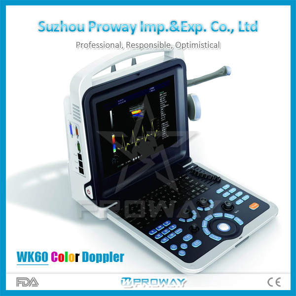 2016 World Popular!!Portable and Useful PRUS-WK60 Portable Ultrasound of high quality