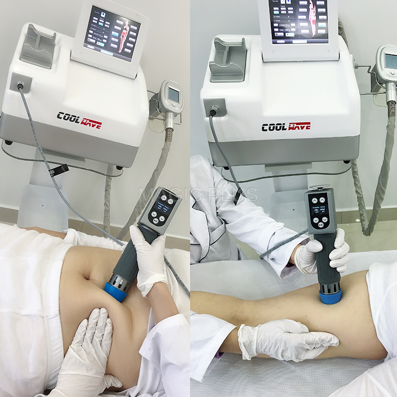 2 in 1  Extracorporeal Shockwave Lithotripter Cryolipolysis Shockwave Therapy Machine