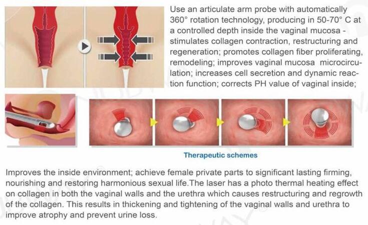 Buon risultato più professionale rf eccitato co2 laser frazionale per vaginale di serraggio rimozione della cicatrice