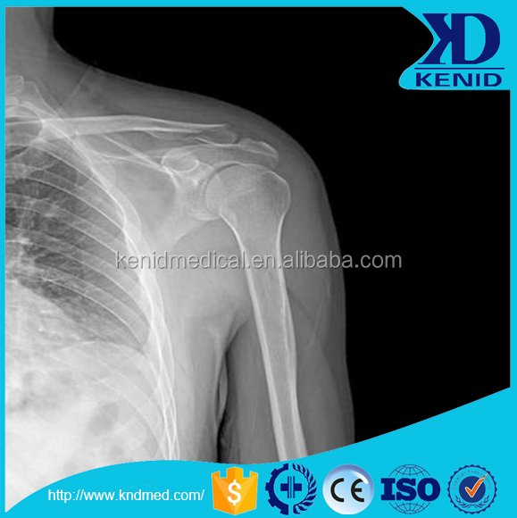 Fuji x-ray film ,x ray dental film,medical x-ray film in 2017 CE approval
