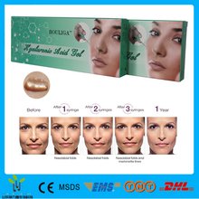 Medical Sodium Hyaluronate Gel/anti- aging & anti-wrinkle Sodium Hyaluronate Gel