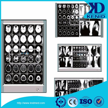 Radiology Equipments & Accessories x ray film illuminator/viewing box/light box