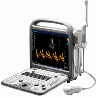 Sonoscape S8 medical color doppler ultrasound machine for vaginal wall exam and breast examination