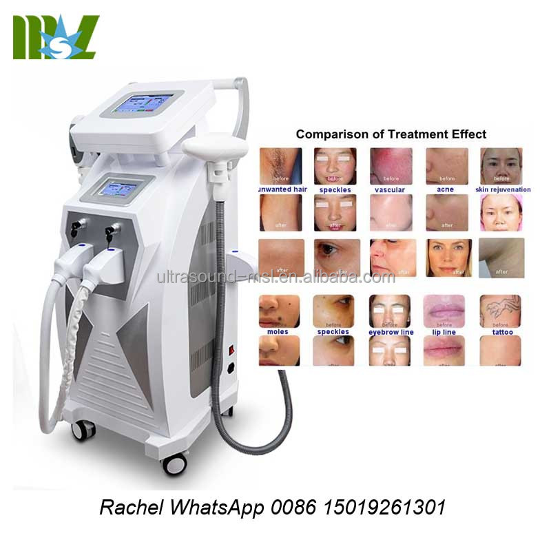 High Durability Nd Yag Laser Tattoo Removal Machine Price/OPT SHR Permanent Hair Removal/Laser Tattoo Removal Machine Price