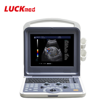 <span class=keywords><strong>Hp</strong></span> <span class=keywords><strong>Laptop</strong></span> Portatile di Colore 4D Ultrasound Scanner in Vendita