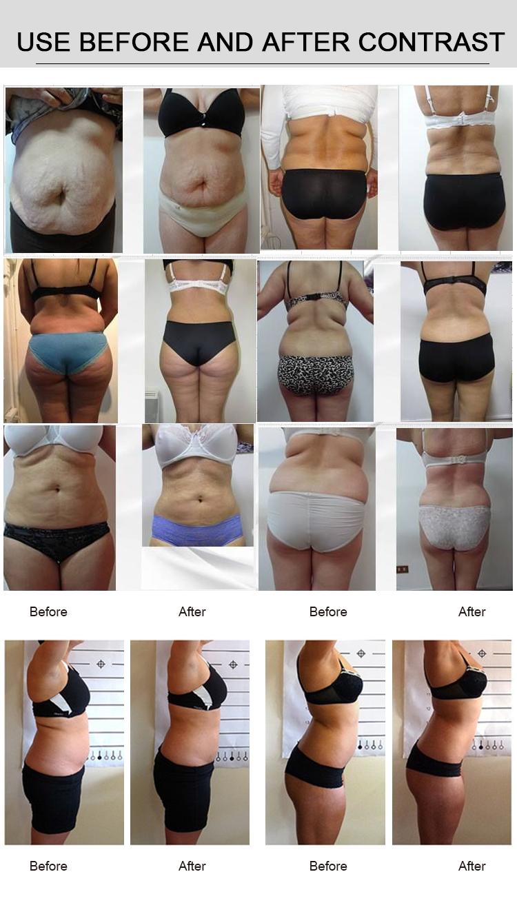 lipomelt body slimming reviews modalități de a pierde în greutate pentru a rămâne gravidă