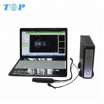 Top Sale Laptop Ophthalmic Ab Mode Ultrasound Scanner Equipment,Ophthalmic  A Scan And B Scan Ultrasound For Eye - Buy Ophthalmic A Scan And B Scan