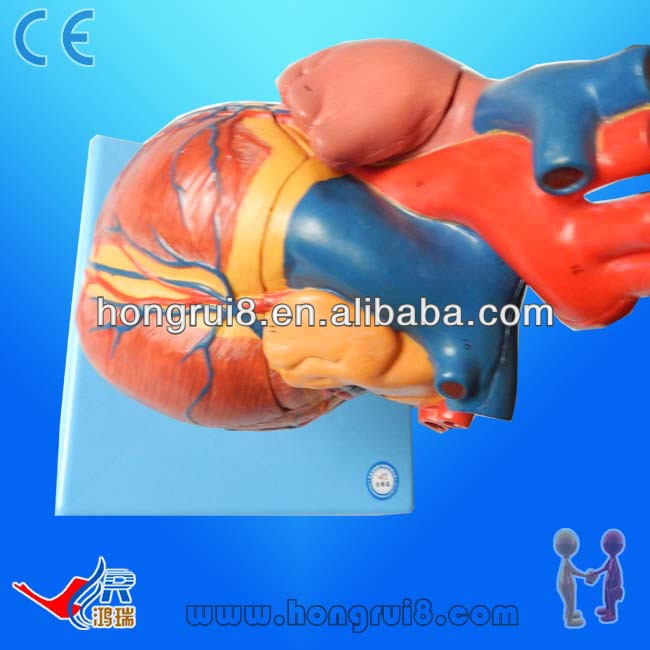 Advanced Enlarged Anatomical Painted Heart,Human Heart