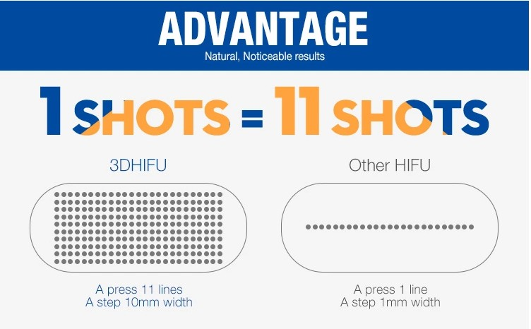 最新 A0225 ポータブル超音波 3d Hifu 2d Hifu 機 1-11 ライン