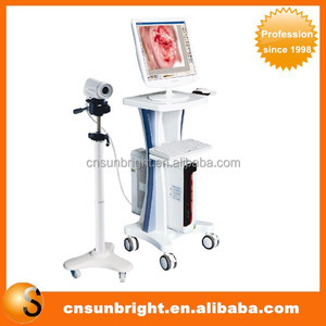 LED Gynaecology video colposcope price in China
