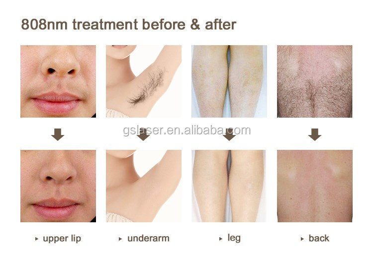 Laser Hair Removal Price In India
