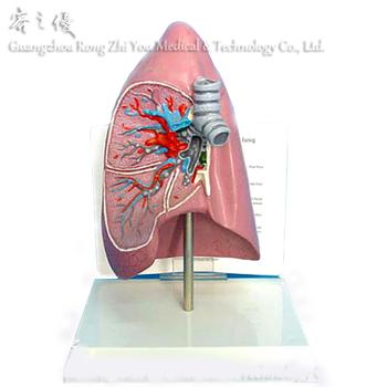 R090207 Medical Anatomy Human Body Parts Disease Lung Model - Buy ...