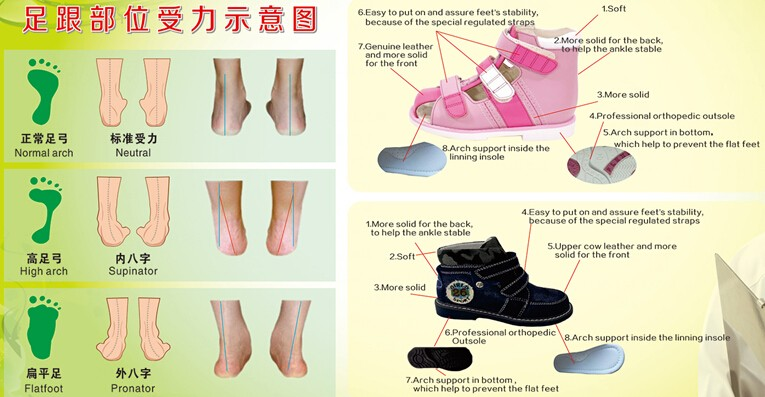615634062a Pretty Summer Orthopedic Shoes For Girls,Kids Orthopedic Sandals,Children  Girls Orthopedic Footwear