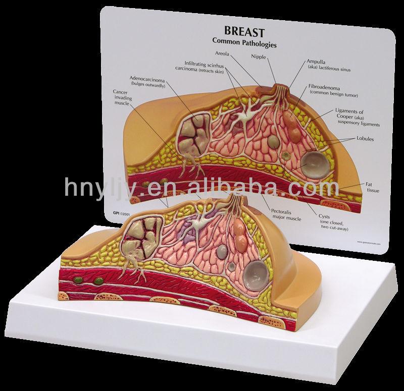 Medizinische Menschlichen Brust Anatomie Querschnitt Modelle - Buy ...