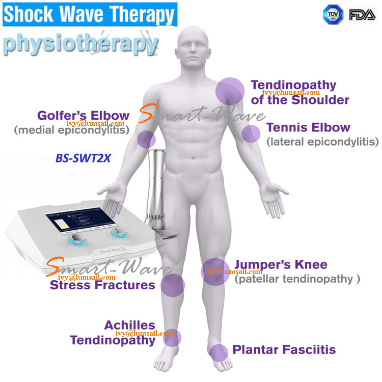Shock Wave Therapy for ALS Stem Cell Therapy (Amyotrophic Lateral Sclerosis) Treatment