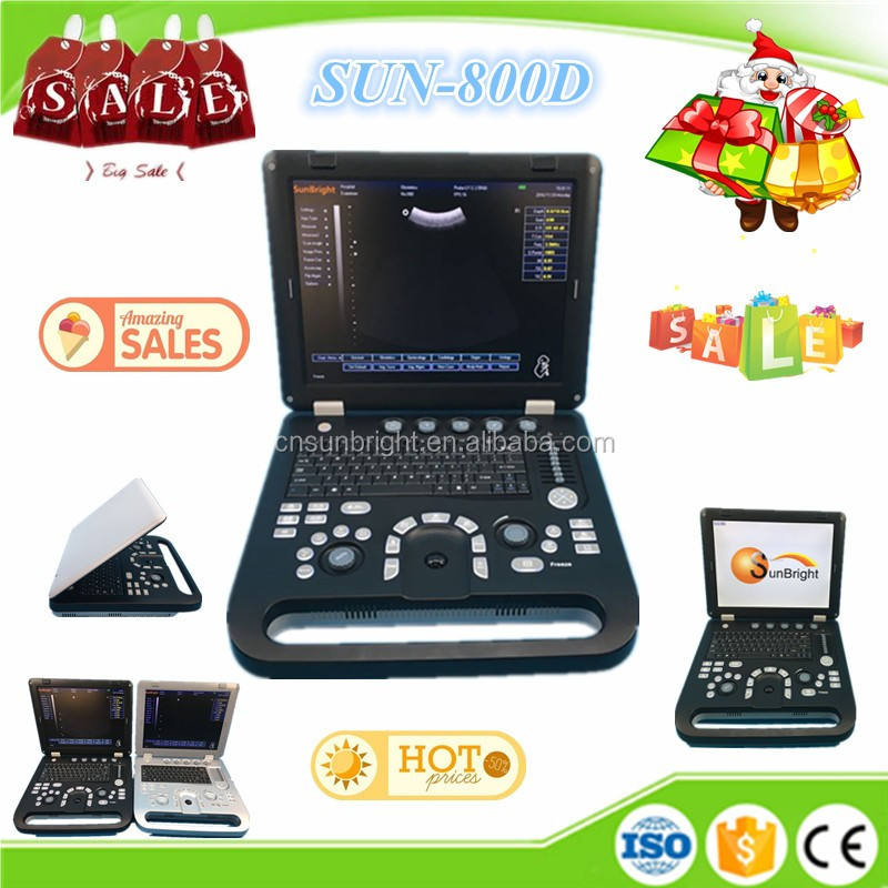 good quality B/W ultrasound SUN-800D with auto-measure software GYN/OB/CAR/UROLOGY/SMALL ORGANS