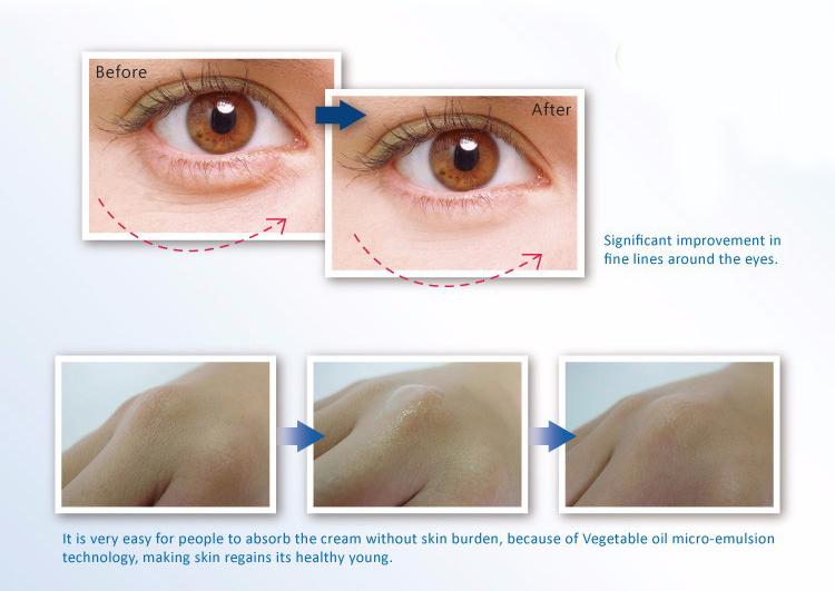 Trẻ hóa đặt kem mắt cho nhu yếu phẩm hàng ngày