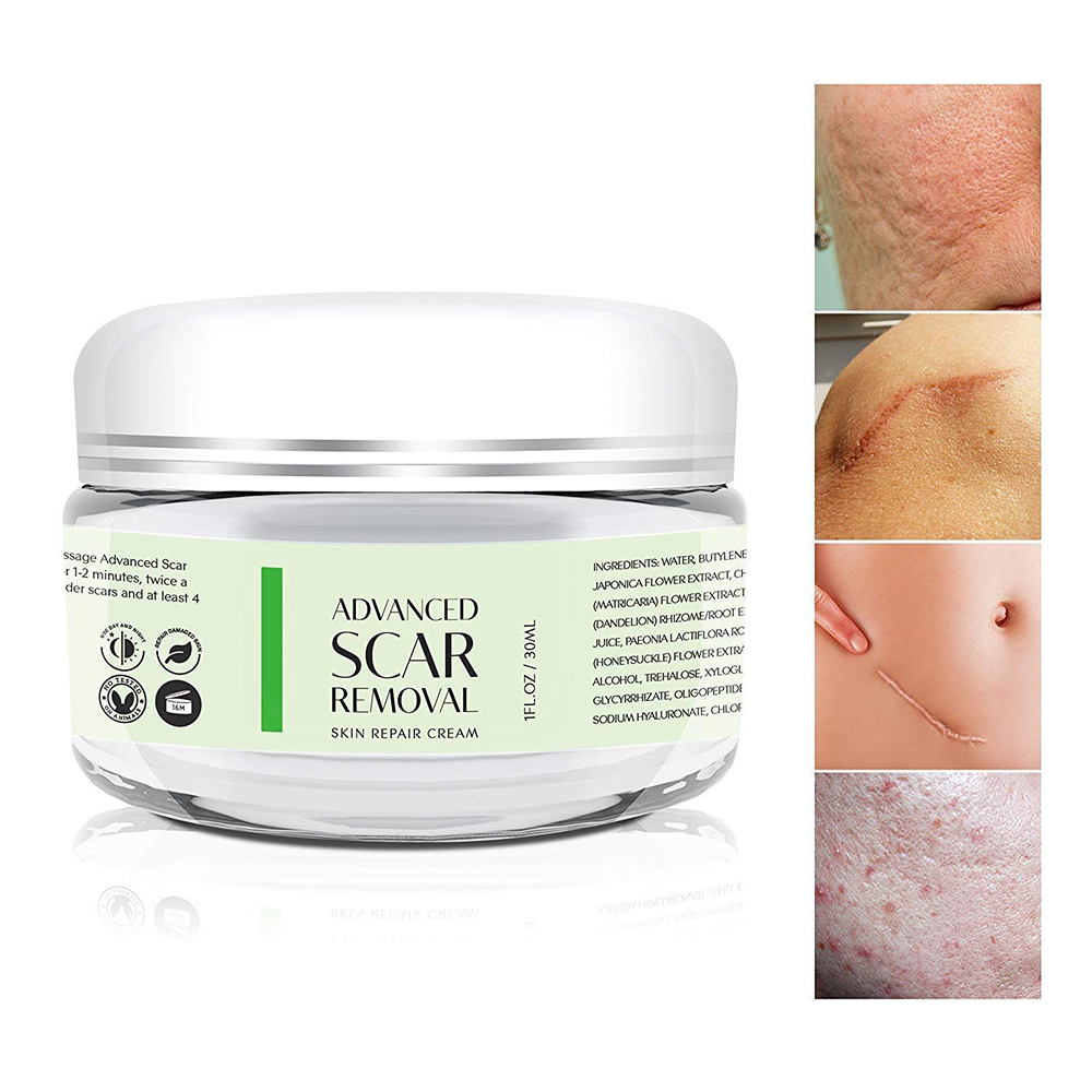 Wholesale Skin Scar Removal Cream for Pimple Acne Scar and Stretch Marks