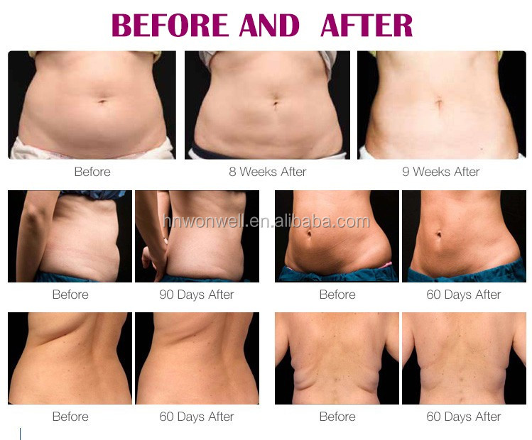 5 in 1 Coolsculption แนวตั้ง cryolipolysis freeze fat เครื่อง