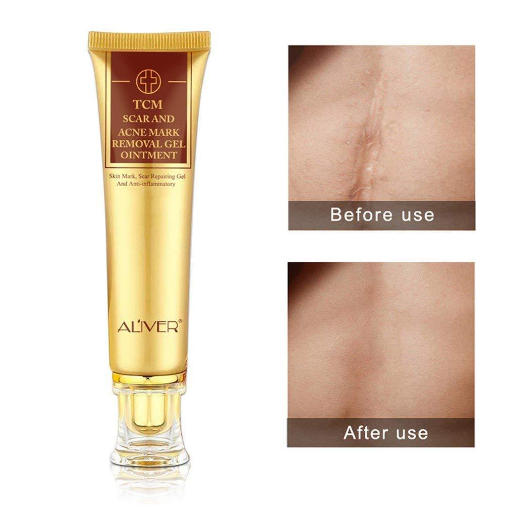 Buy Acne Scar Removal Cream Woya Acne Spots Treatment Care Scar