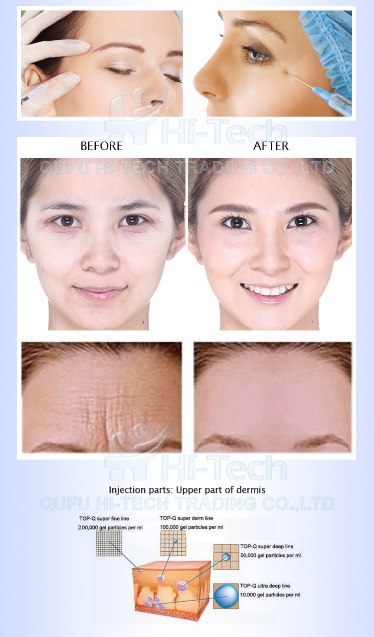 2cc TOP-Q Fineline cosmetic filler hyaluronic acid wrinkles injections
