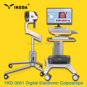 Digital Electronic Colposcope for Gynecology