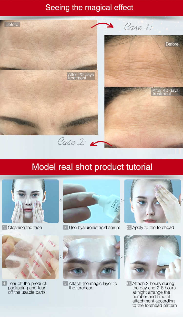 Clear Adhesive Reusable Anti-wrinkle gel Pads for Forehead and Eyes, secret strips
