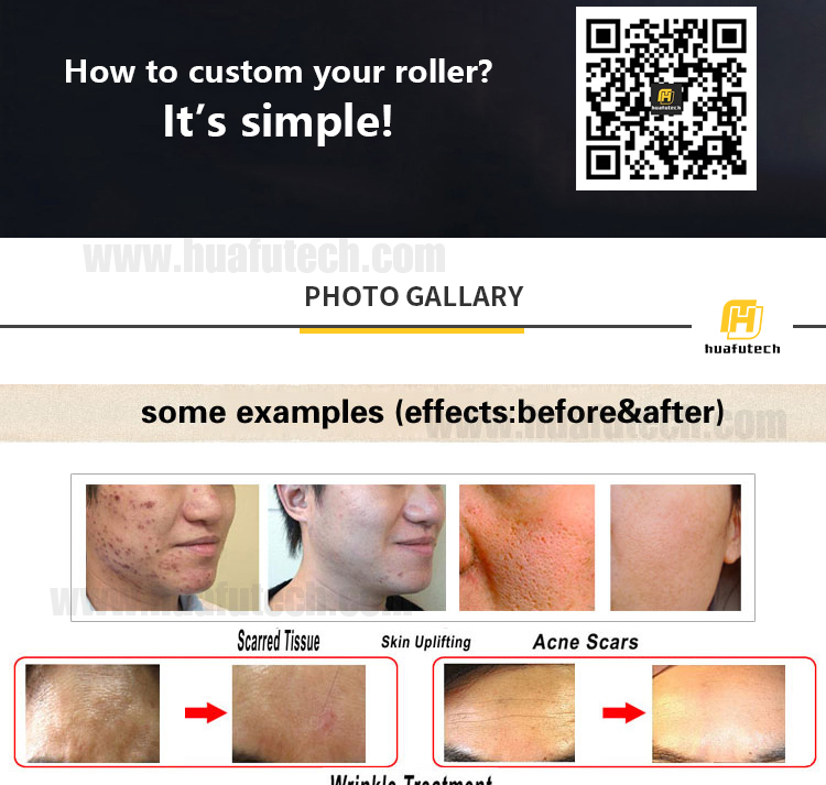 Derma Skin Roller Mikronadel-Therapiesystem mts