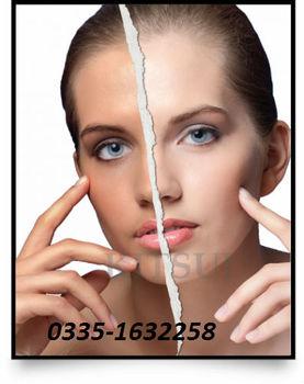 Glutathione Skin Whitening Pills For Black Skin In  Pakistan-call-0335-1632258 - Buy L-glutathione Softgel Skin Whitening Pills  Product on Alibaba com