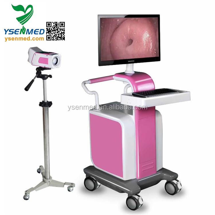 Portable Gynecology Beautiful Video Colposcope for Vagina Digital Colposcope