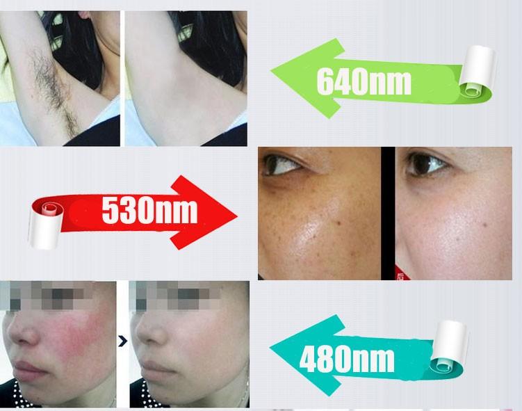 IPL Laser ipl opt shr Hair Removal Machine / ipl laser ipl opt skin rejuvenation