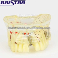 High quality clear dental implant practice model with bone and caries